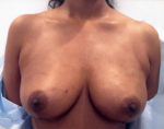 Breast Augmentation Using Fat Grafting (Transfer)
